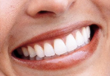tooth-whitening-melbourne